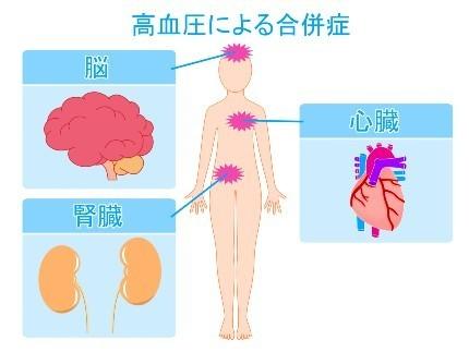 人体模型図