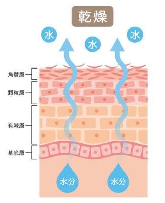 乾燥肌の断面